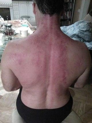 Гуаш скребковый массаж | Мариуполь