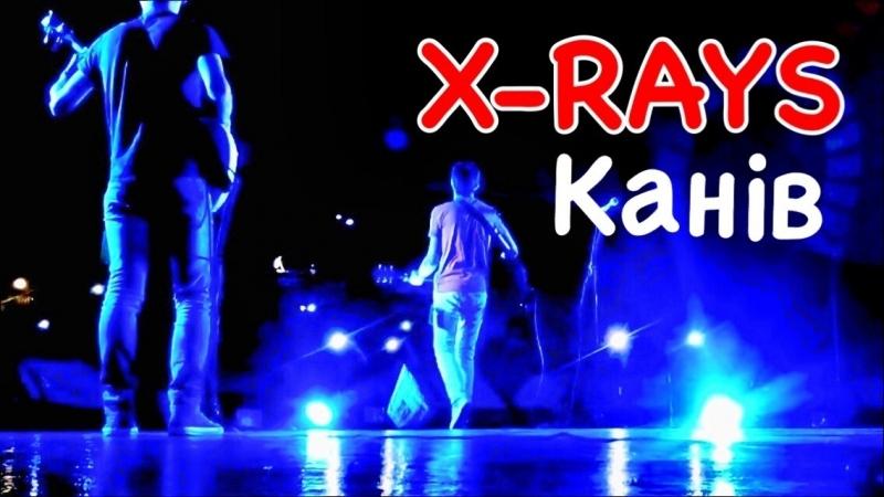 X-Rays - Канів (2018)