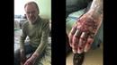 Серый приехал в больницу навестить Дядю Юру / Лопнула кожа на руках / Хочу Пожрать