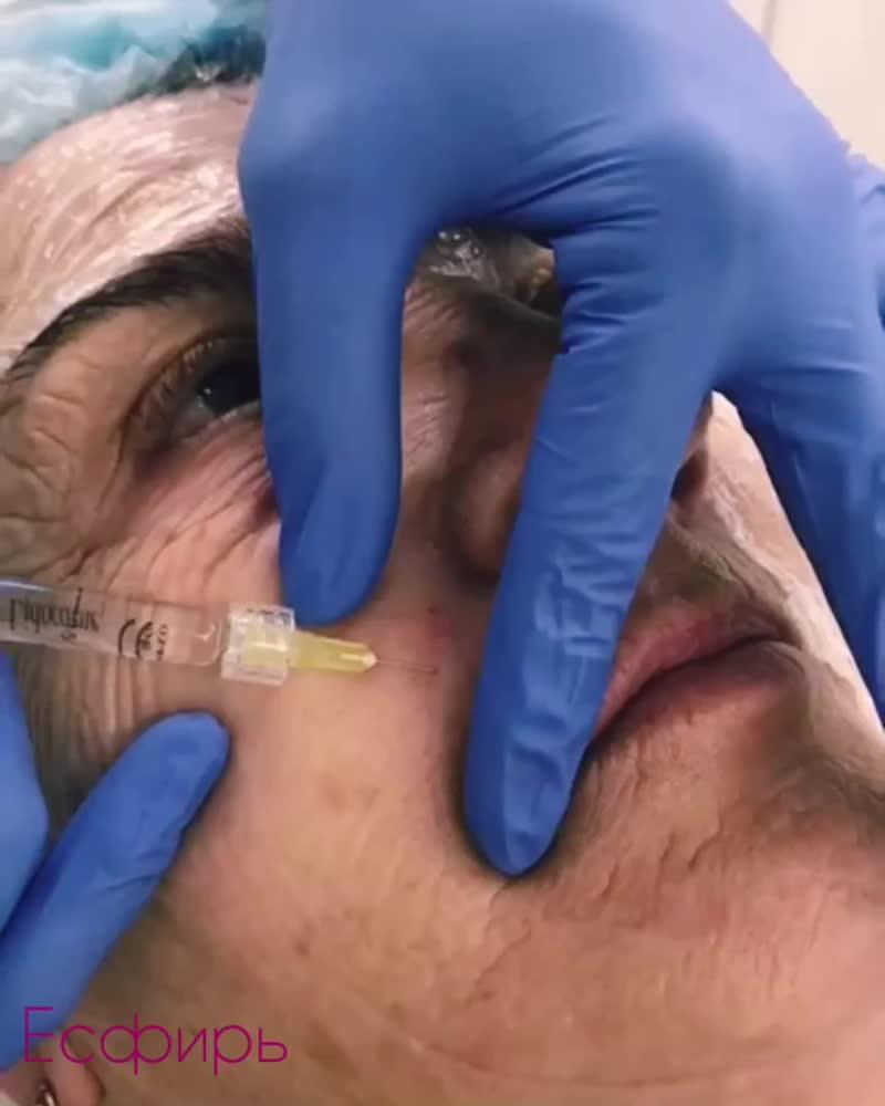Skin Booster - новая методика омоложения