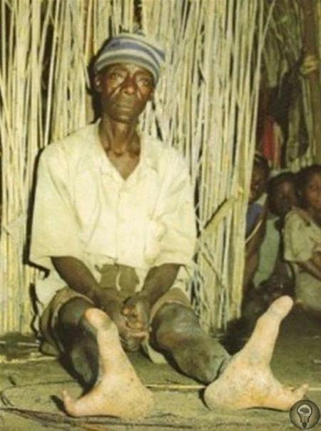 Двупалое племя родом из Зимбабве. Как живут люди с двумя пальцами На окраине нашей необъятной планеты, есть такая страна Зимбабве. И есть в этой стране племена. На самом деле их очень много, но