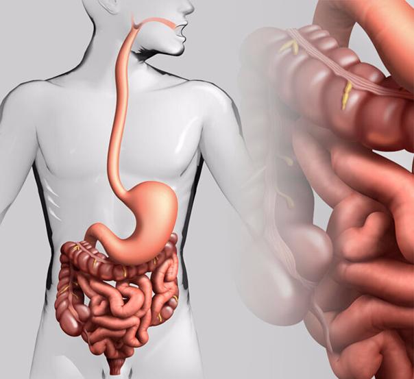 Воспаление кишечника и ДЕПРЕССИЯ: в чем связь?