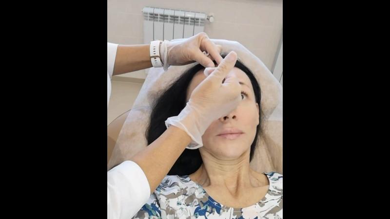 Коррекция морщин оба переносицу вокруг глаз и шеи ботулотоксином