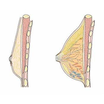 Слева — мужская грудь, справа — женская.