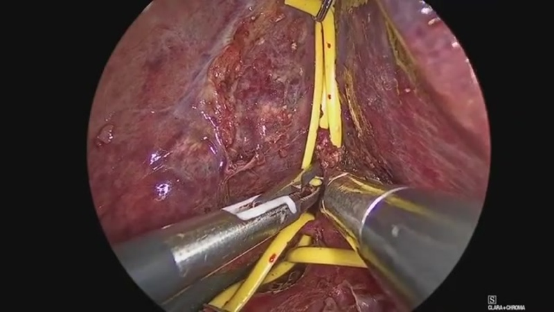 Full Laparoscopic Anatomical Segment 8 Resection for Hepatocellular Carcinoma Using the Glissonian Approach with Indocyanine Gre