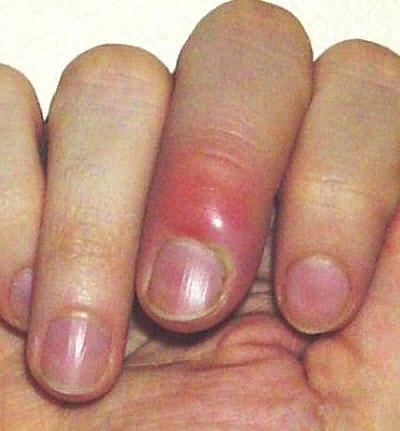 Паронихия - это... Воспаление околоногтевого валика: причины и лечение, изображение №2